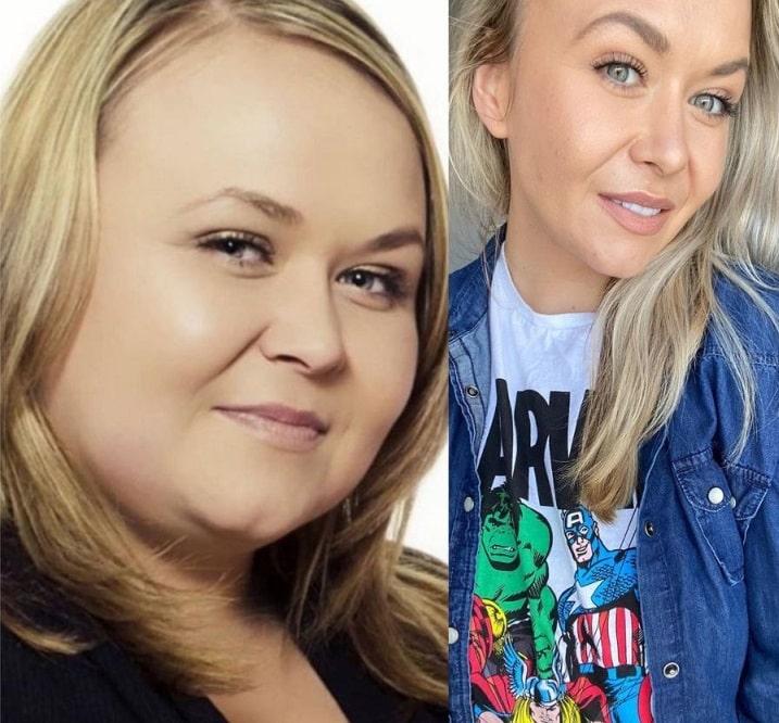 Keto Slender Weight Loss Transformation